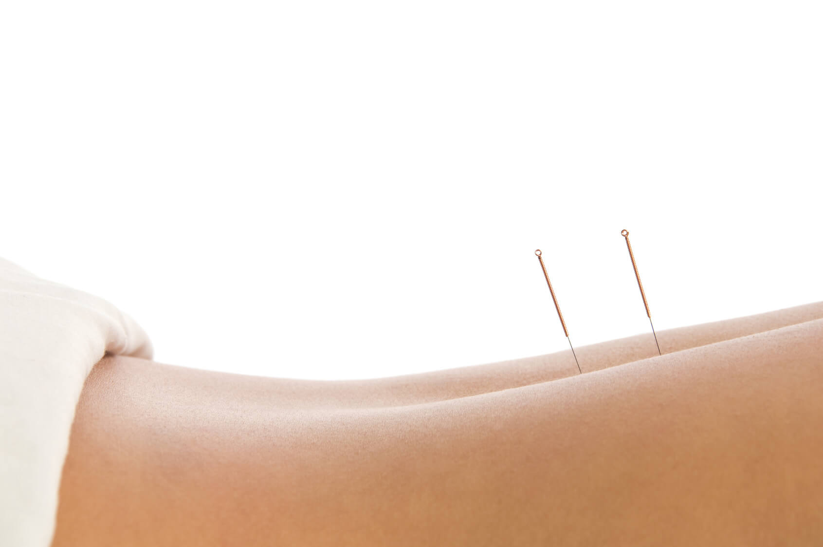 back pain acupuncture